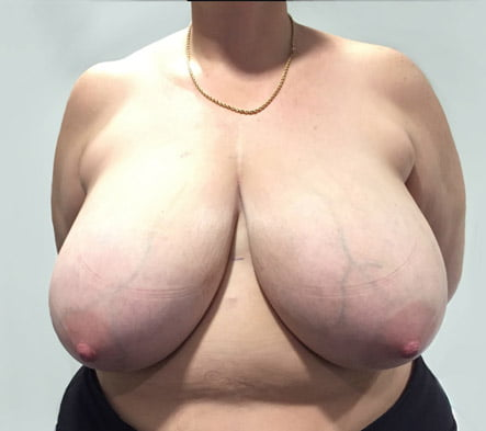 Brisbane Greenslopes breast reduction surgery review Dr Sharp