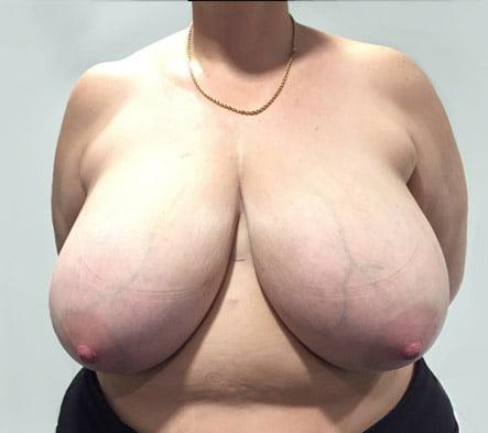breast reduction reviews Brisbane surgeon
