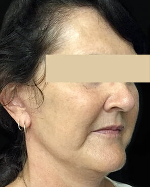 after facelift surgery with Dr Sharp in Ipswich or Brisbane