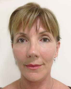 Facelift surgery in Ipswich and Brisbane photos