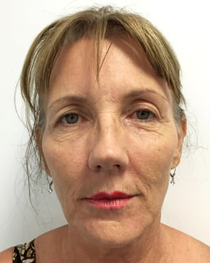 facelift surgery Brisbane and Ipswich before photo