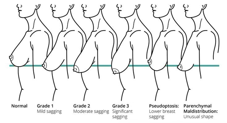 Do I need a breast lift ptosis grading 1