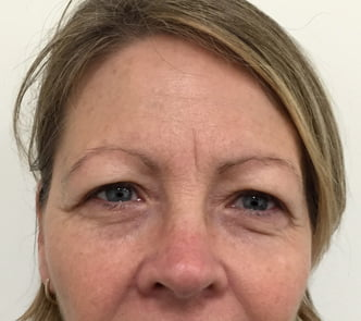 before and after photos eyelid lift review Ipswich