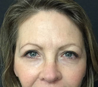 Facelift and blepharoplasty 1b eyelid lift reduction Dr Sharp