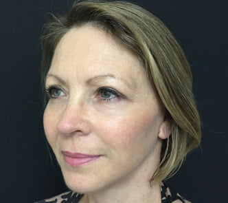 Facelift and blepharoplasty 1d eyelid lift reduction Dr Sharp