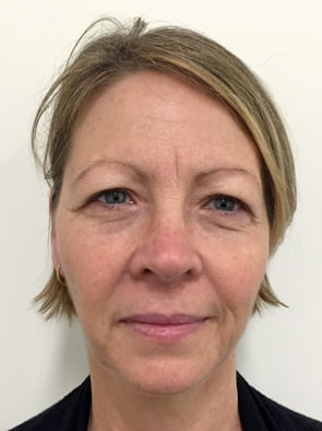 Brisbane plastic surgeon before facelift photo