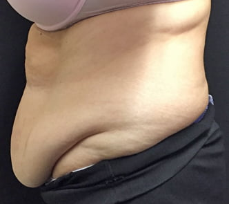 before and after tummy tuck review Brisbane and Ipswich