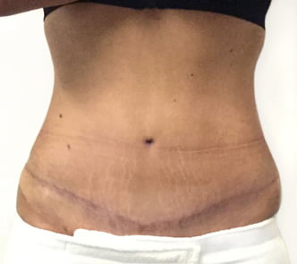 after abdominoplasty surgery with Dr Sharp