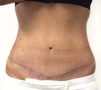 Abdominoplasty Amp Tummy Tuck Surgery Dr David Sharp