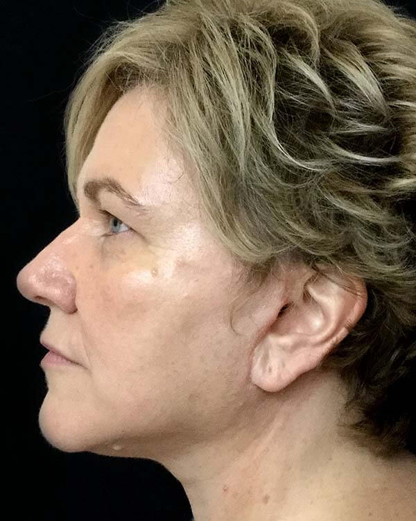 after facelift surgery Dr Sharp