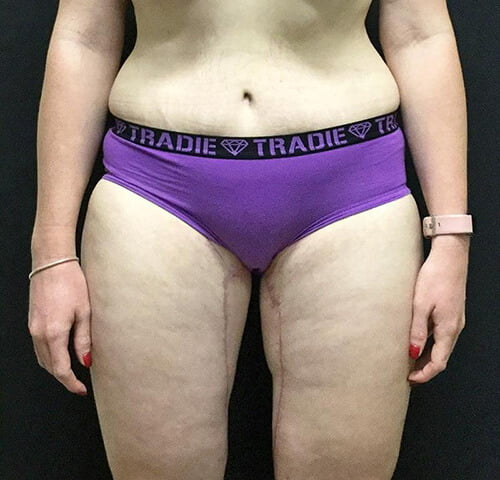 after thigh lift tummy tuck Dr Sharp