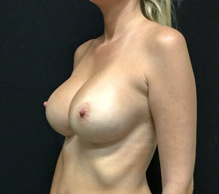 breast implant remove and replace Brisbane Ipswich Dr Sharp