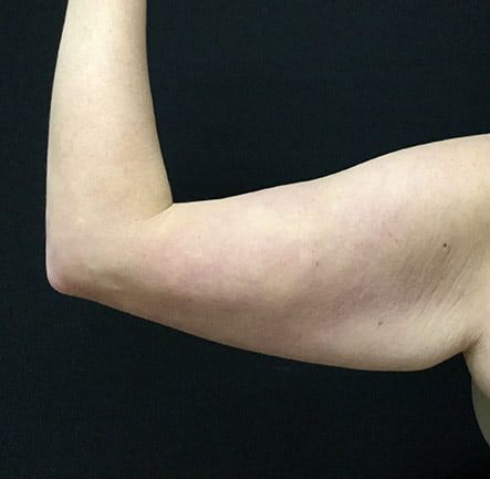 brachioplasty arm lift Brisbane before photo