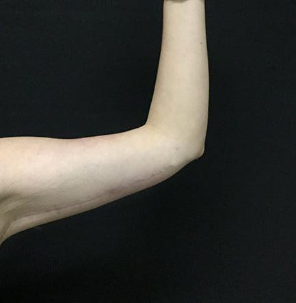 arm reduction brachioplasty