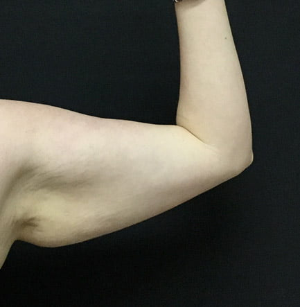 brachioplasty arm lift before