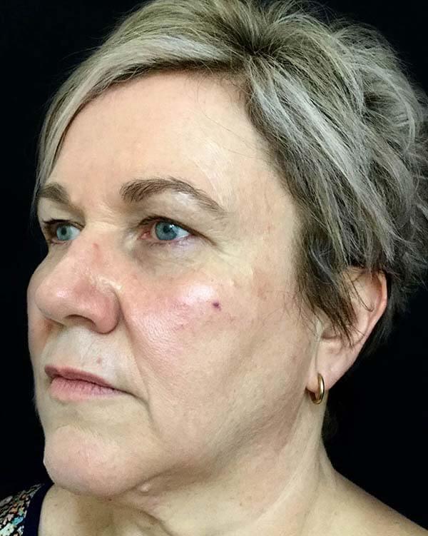Brisbane plastic facelift surgeon