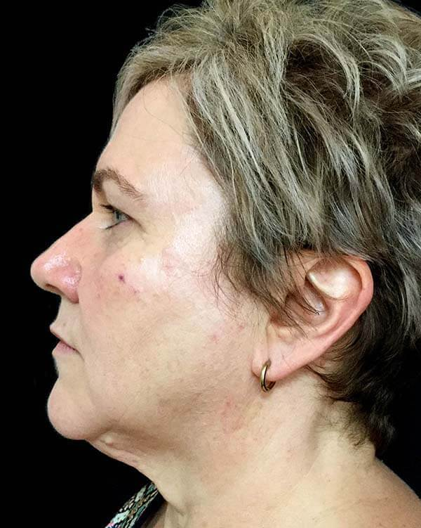 facelift surgeon results Dr Sharp