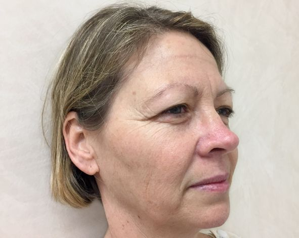 before facelift surgery with Dr Sharp Brisbane