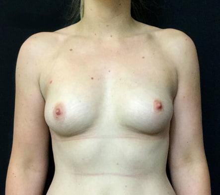 Brisbane breast augmentation reviews surgeon