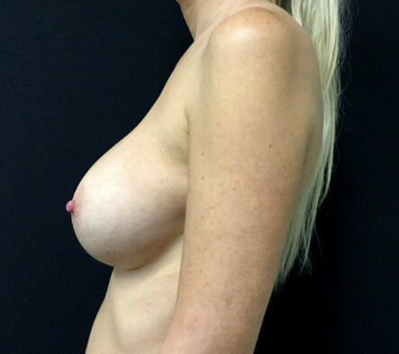 breast implant revison surgery Brisbane Ipswich Dr Sharp