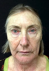 Facelift surgeon Australia