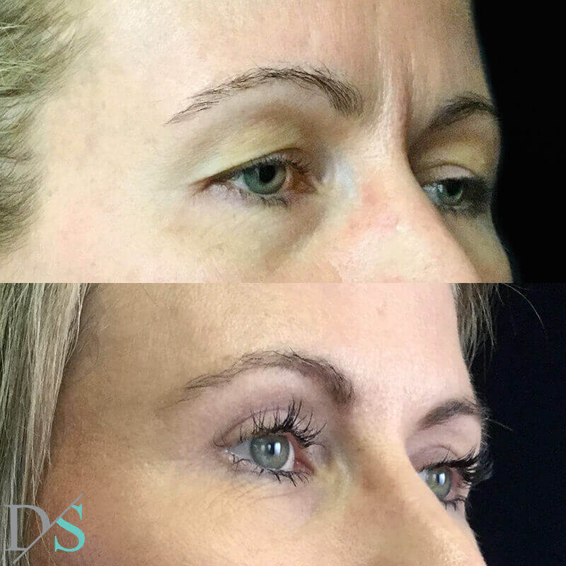 blepharoplasty eyelid surgery Brisbane surgeon