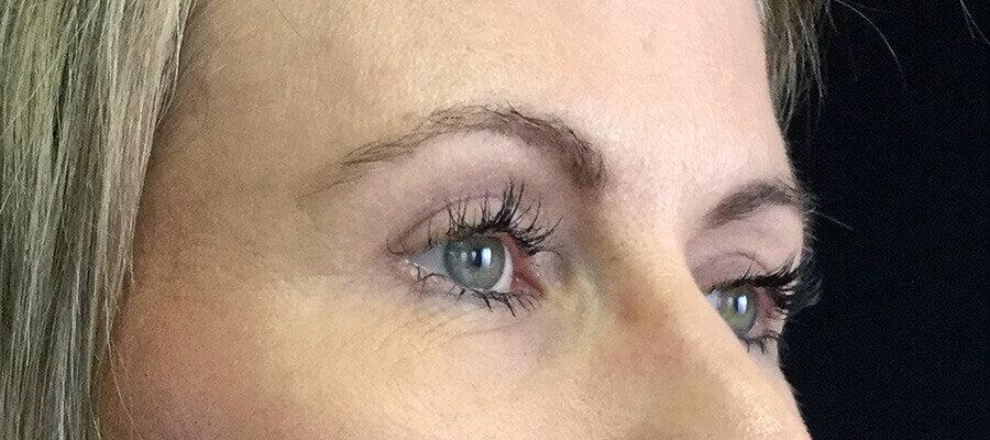 Eyelid Reduction | Dr  David Sharp | Blepharoplasty