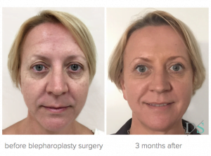 blepharoplasty surgery Brisbane