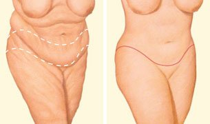 Which Brisbane surgeon for body lift