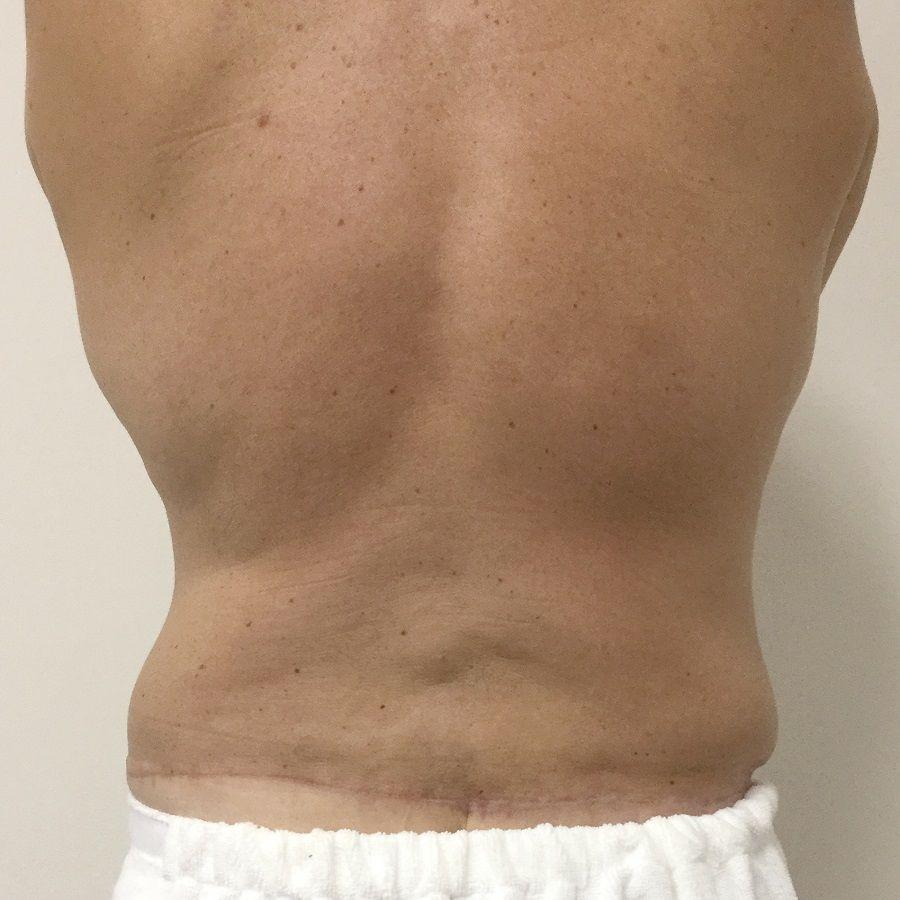 body contouring surgery Ipswich and Brisbane