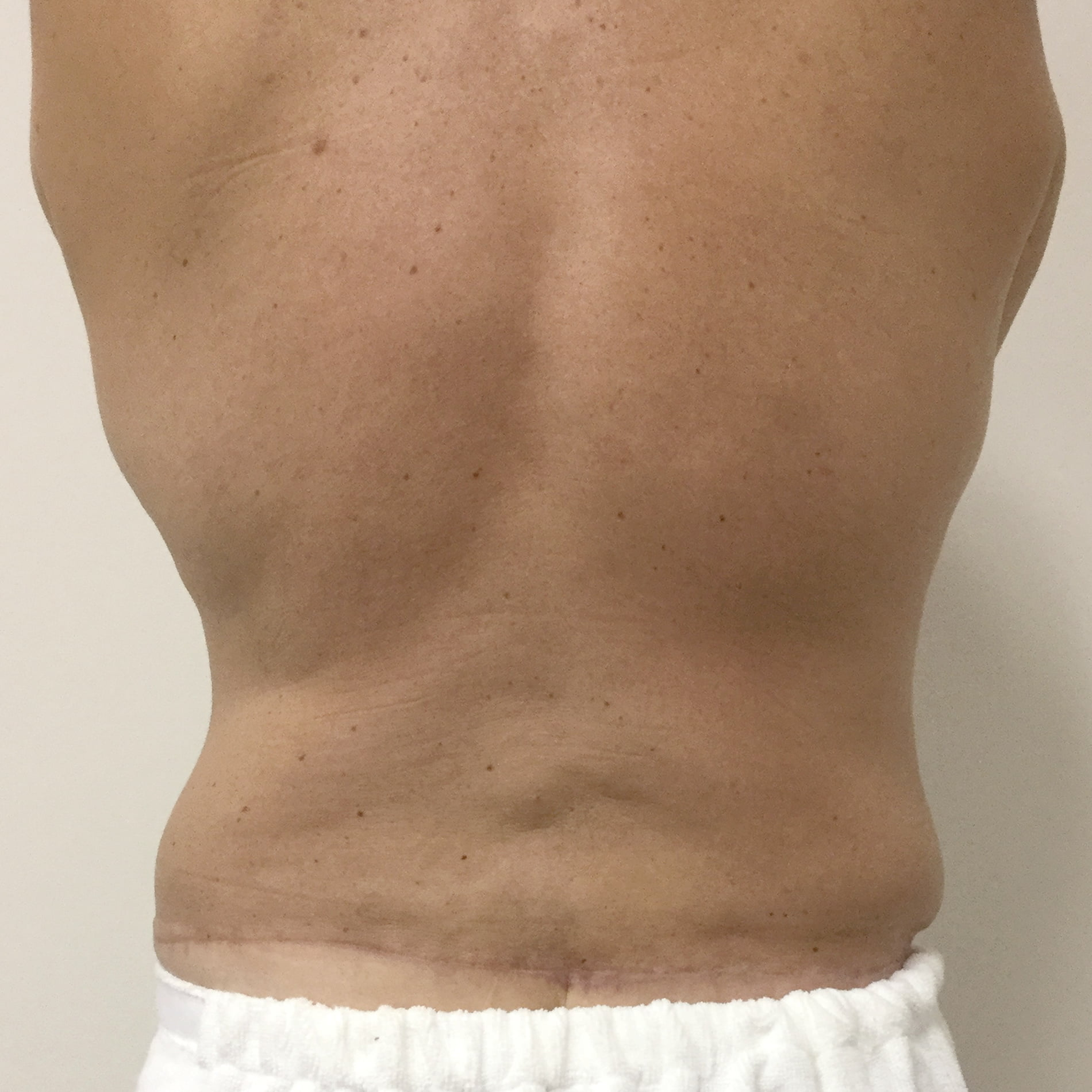 body contouring surgery Ipswich and Brisbane