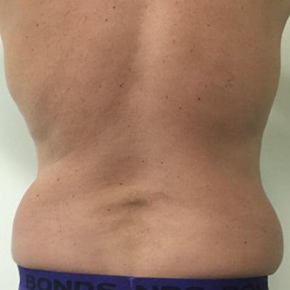 body lift surgeon Brisbane and Ipswich