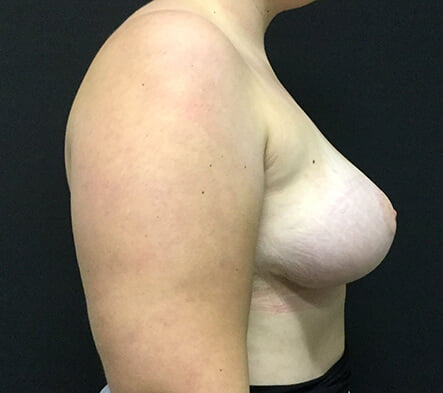 Asymmetric breasts Dr David Sharp after photo reduction and augmentation