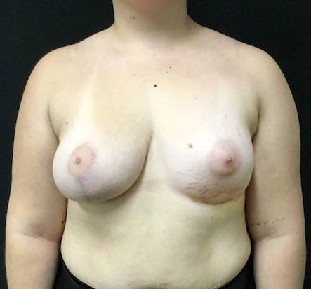 After breast asymmetry correction with Dr Sharp plastic surgeon Brisbane