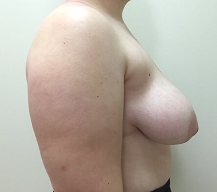 breast augmentation and reduction for asymmetry Dr Sharp Brisbane and Ipswich