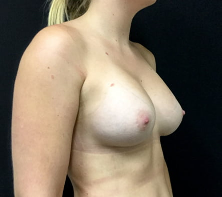Dr David Sharp breast implants surgeon Brisbane
