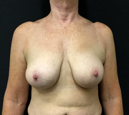 Brisbane breast implant removal and replacement