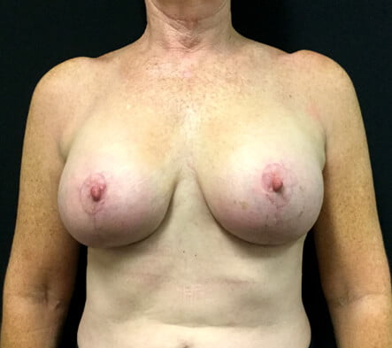 revision of breast implant surgery