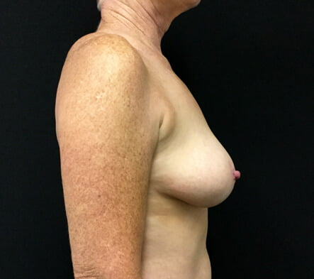 remove and replace breast implant
