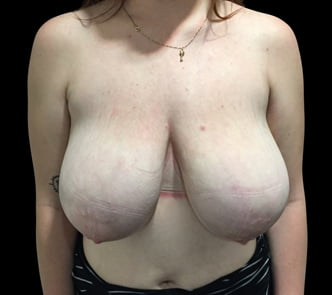 Brisbane breast reduction surgery Dr Sharp