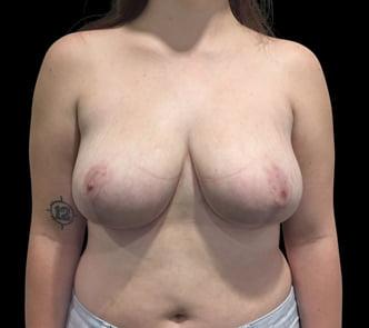 Breast reduction Ipswich and Brisbane