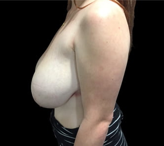 Review of breast reduction Surgeons in Brisbane and Ipswich