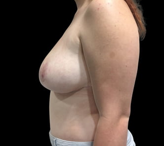 before and after breast reduction surgery Brisbane