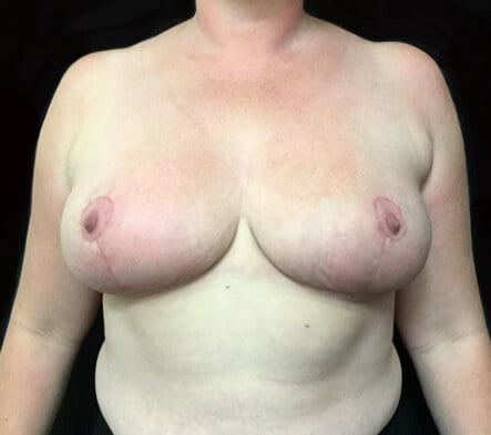 Brisbane Greenslopes breast reduction surgery Dr Sharp