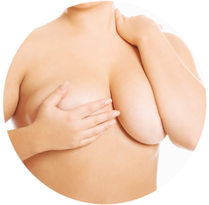 breast reduction Brisbane