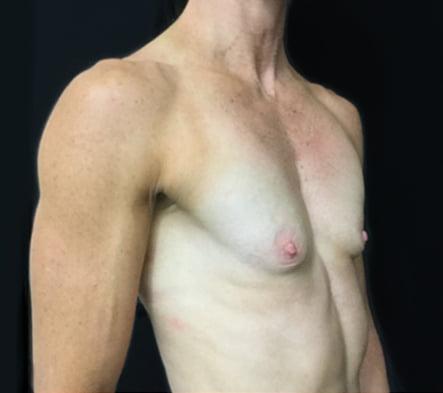 Breast augmentation recommended surgeon Brisbane