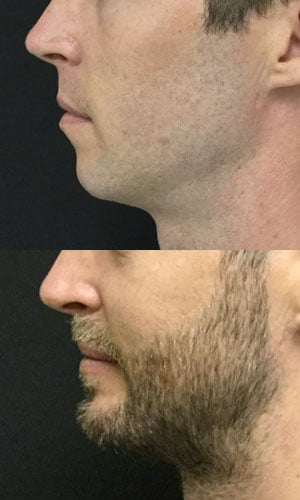 genioplasty chin augmentation Dr David Sharp
