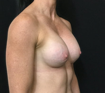 Breast augmentation reviews Brisbane surgeon