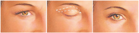 eyelid reduction surgery in Brisbane and Ipswich
