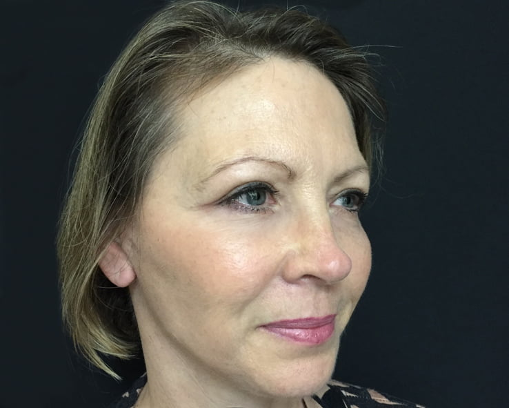 after facelift surgery with Dr Sharp Brisbane